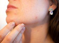 traiter efficacement acné
